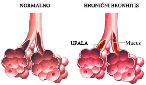 hronicni-bronhitis